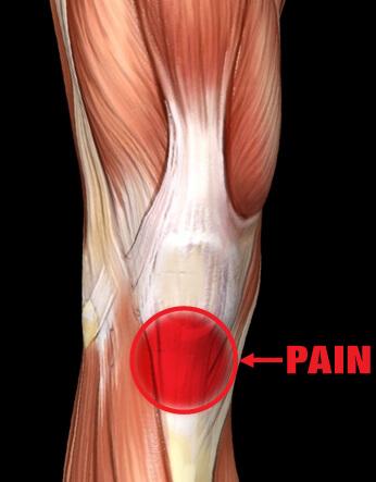 Patellar Tendonitis Pain
