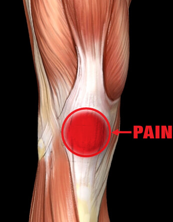 Patello-Femoral injury